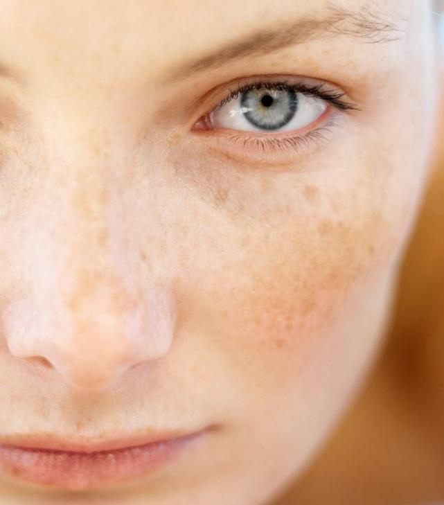 Cicatriz de acne com peeling de ATA