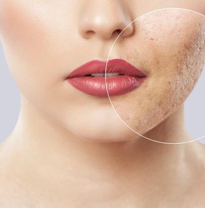 Preenchimento com acido hialurônico de cicatrizes de acne