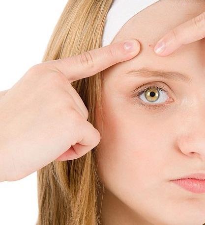 O que fazer para tratar a acne ?